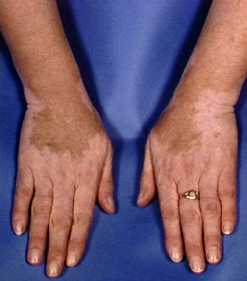 Areas of depigmentation - RightDiagnosis.com