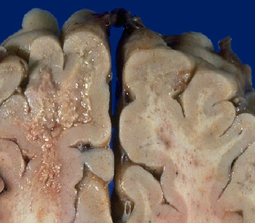 Fotografía de un cerebro con Encefalopatía Espongiforme Bovina