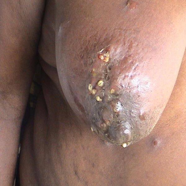 maggots eating breast